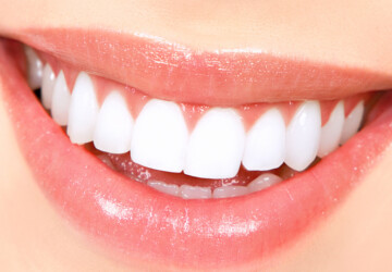 Celebrities Teeth Whitening Secrets Revealed - White, teeth, dentist
