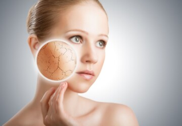 How to Put a Stop to Dry Skin - Makeup, Lifestyle, dry skin
