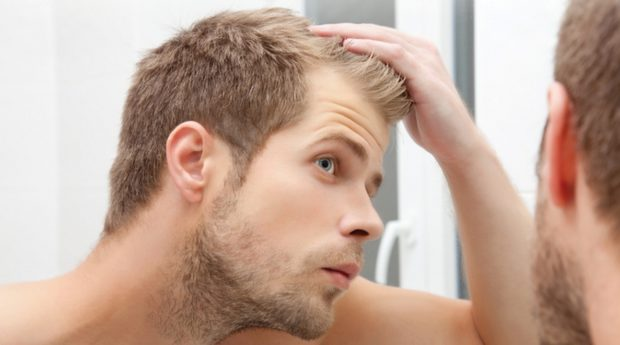 2019 Guide to Hair Loss Prevention - prevention, man, loss, Hair