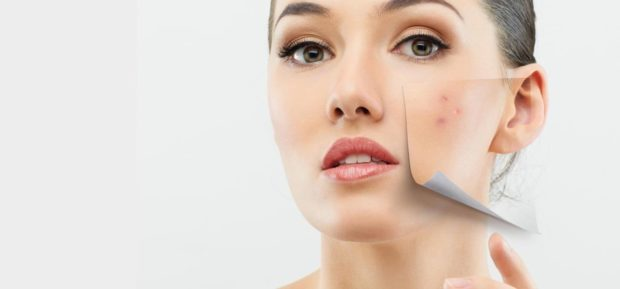 THE SKIN BEFORE AND AFTER ACNE REMOVAL BY THE EXPERTS - treatments, skin, removal, products, natural treatment, hormones, healthy food, experts, acne