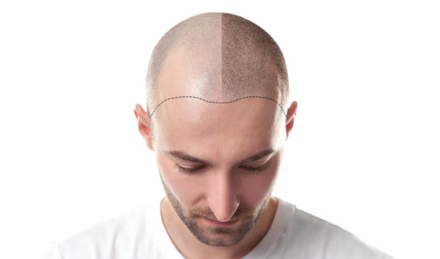 3 Reasons Why Hair Transplants In Turkey Are The Ultimate Experience