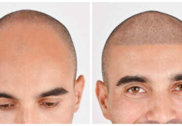 Should You Get A Scalp Micropigmentation? 5 Reasons To Think About It - tips, scalp, micropigmentation