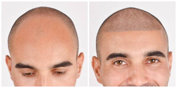 Should You Get A Scalp Micropigmentation? 5 Reasons To Think About It