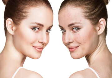 Skin Purging Versus Breakouts: All You Need to Know - woman, Skin purging, skin, fashion, care