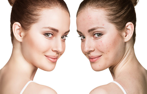 Skin Purging Versus Breakouts: All You Need to Know