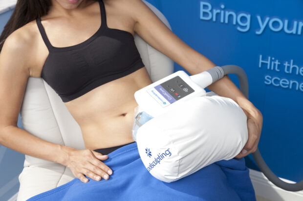Fascinating Facts About Coolsculpting - fashion, coolsculpting, beauty