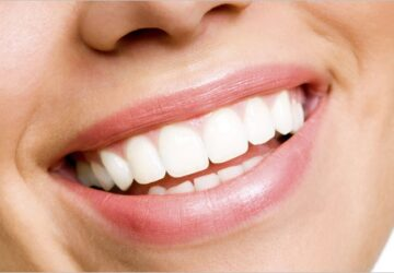 How You Can Improve Your Smile in A Week - smile, improve, dental, crown, appointment