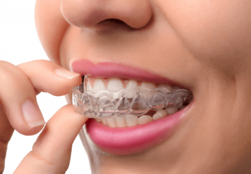 Invisalign Benefits & The Process - teeth, orthodontist, invisalign, dental