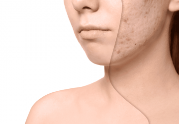 The Best Acne Scar Removal Therapy - removal, laser skin, dermal fillers, acne scar