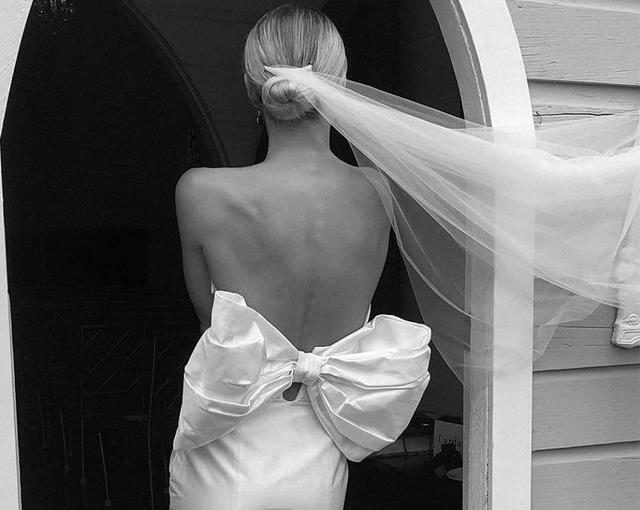 Beauty Treatments You Must Do Before Your Wedding Day - weddings, wedding dress, wedding beauty treatments, wedding beauty, style motivation, style, fashion, beauty treatments