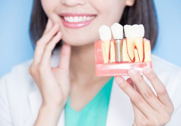When Should You Opt for Dental Implants? - health, dental, beauty
